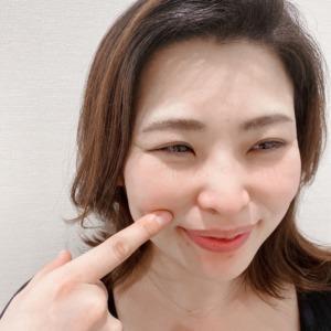 美容鍼ほうれい線の効果